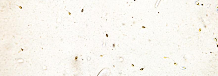 Донация спермы Клиника Альтернатива