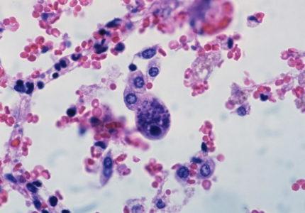 Міфи про торч-інфекції: лікувати чи ні