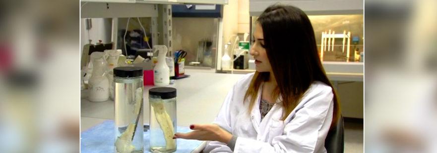 «Рідкі кості» – новий крок у трансплантології